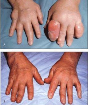 epidemiologi gout arthritis